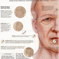 Editorial-New-York-Times-Science-Times-Plastic-Surgery