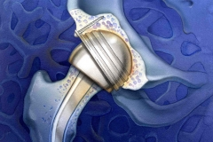 Surgical-Acute-Care-Magazine-Hip-Replacement