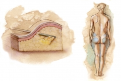 Surgical-American-Society-for-Aesthetic-Plastic-Surgery-Inc._Liposuction