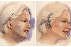 Surgical-American-Society-for-Aesthetic-Plastic-Surgery-Inc._Lower-Face-and-Neck-Lift