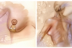 Surgical-American-Society-for-Aesthetic-Plastic-Surgery_BR
