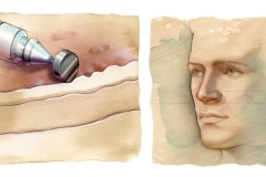 Surgical-American-Surgical-Society-for-Aesthetic-Plastic-Surgery-Inc._Dermabrasion-Inc.