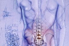 Surgical-Frontiers-Magazine-Building-a-Better-Back-